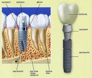 Фото: Строение импланта