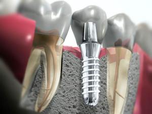 Что такое имплантация зубов, обзор цен