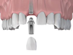 Фото: Как происходит имплантация зубов?
