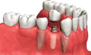 Фото: Имплантация зубов