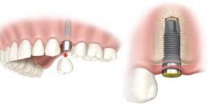 Фото: Имплантация зубов BOI