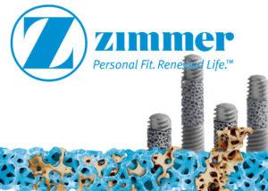 Импланты Зиммер, обзор цен