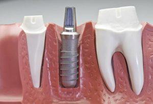 Фото: Потеря зуба