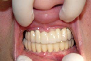Фото: Протезирование зубов