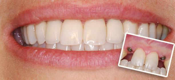 Фото: Эстетичность зубов