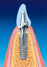 Фото: Особенности имплантов Анкилоз