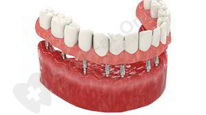 Базальная имплантация зубов: преимущества и недостатки