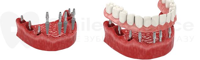 bazalnaya-implantacia-zubov