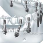 Фото: Базальная имплантация зубов