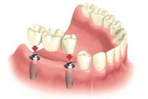 Где сделать имплантацию зубов — общие принципы выбора клиники, обзор цен