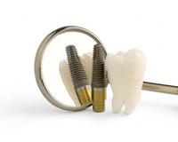Фото: Экспресс-имплантация зубов