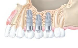 Фото: Особенности имплантов Friadent