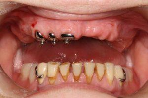 Фото: Давление на опорные зубы