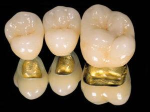 Фото: Металлокерамика с золотым каркасом