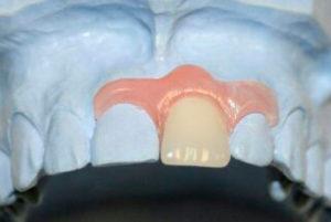 Фото: Применяется при потере одного зуба