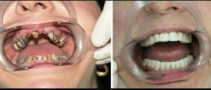 Фото: Отсутствие одного или нескольких зубов