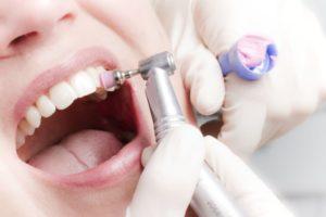 Фото: Чистка зубов