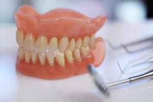 Фото: Зубные протезы на присосках