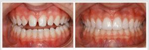 Фото: Промежутки между зубами