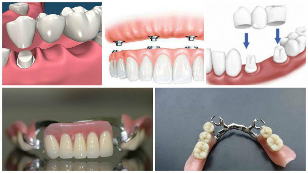 Какие есть зубные протезы и их цена