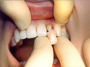 Фото: Установка коронок на зубы