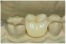 Фото: Протезирование зубов без обточки