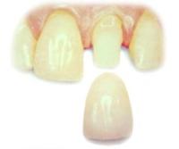 Фото: Зубное протезирование