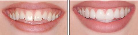 Люминиры: фото до и после