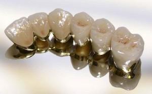 Металлокерамика для зубов, обзор цен