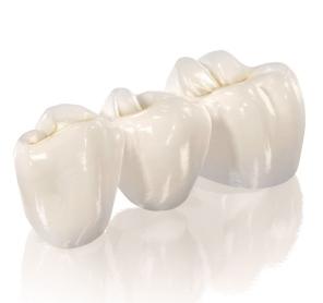 Фото: Мостовидные зубные протезы