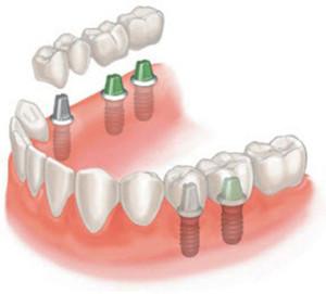 Фото: Установка зубных мостов