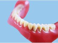 Фото: Изготовление зубных конструкций