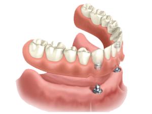 Покрывной зубной протез, обзор цен