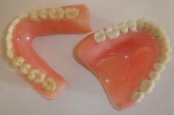Фото: Виды зубных протезов