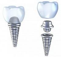 Отторжение зубных имплантов