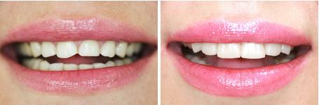 Ультраниры: фото до и после
