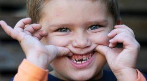 Фото: Детский периодонтит