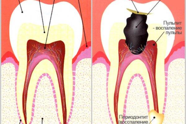 Что делать если воспалился корень зуба в  492
