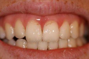 Фото: Потемнение зуба