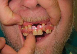Фото: Отсутствует несколько зубов