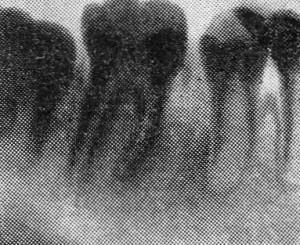 Фото: Периодонтит на рентгет-снимке