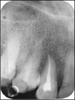 Фото: Рентген-снимок зуба