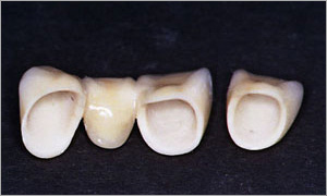Фото: Зубные коронки из оксида алюминия