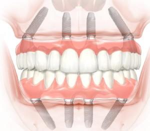 Фото: Технология all-on-4 верхней и нижней челюсти