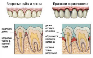 Фото: Симптомы верхушечного периодонтита