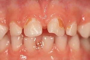 Кариес молочных зубов у детей: что делать и как его лечить?