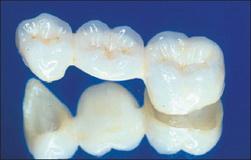 Фото: Зубные коронки