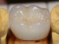 Циркониевые коронки — обладают хорошей приживаемостью и не вызовут аллергии