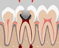 Хронический фиброзный периодонтит: симптомы, диагностика и лечение