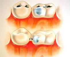 Фото: Лечение стоматологического заболевания